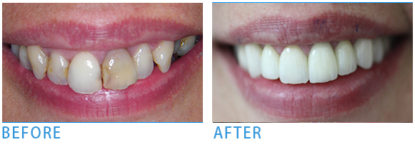 Pure Porcelain Crowns - Before after