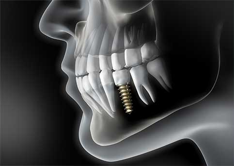 SW19 Confidental Clinic Dental Implants